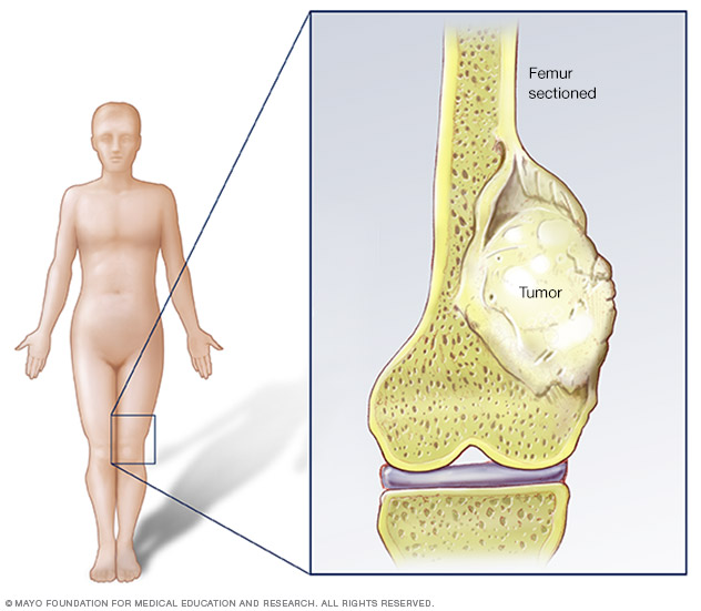 Osteosarcoma is a type of bone cancer that begins in the cells that form the bone. Osteosarcoma occurs most often in the long bones of the arms and legs.
