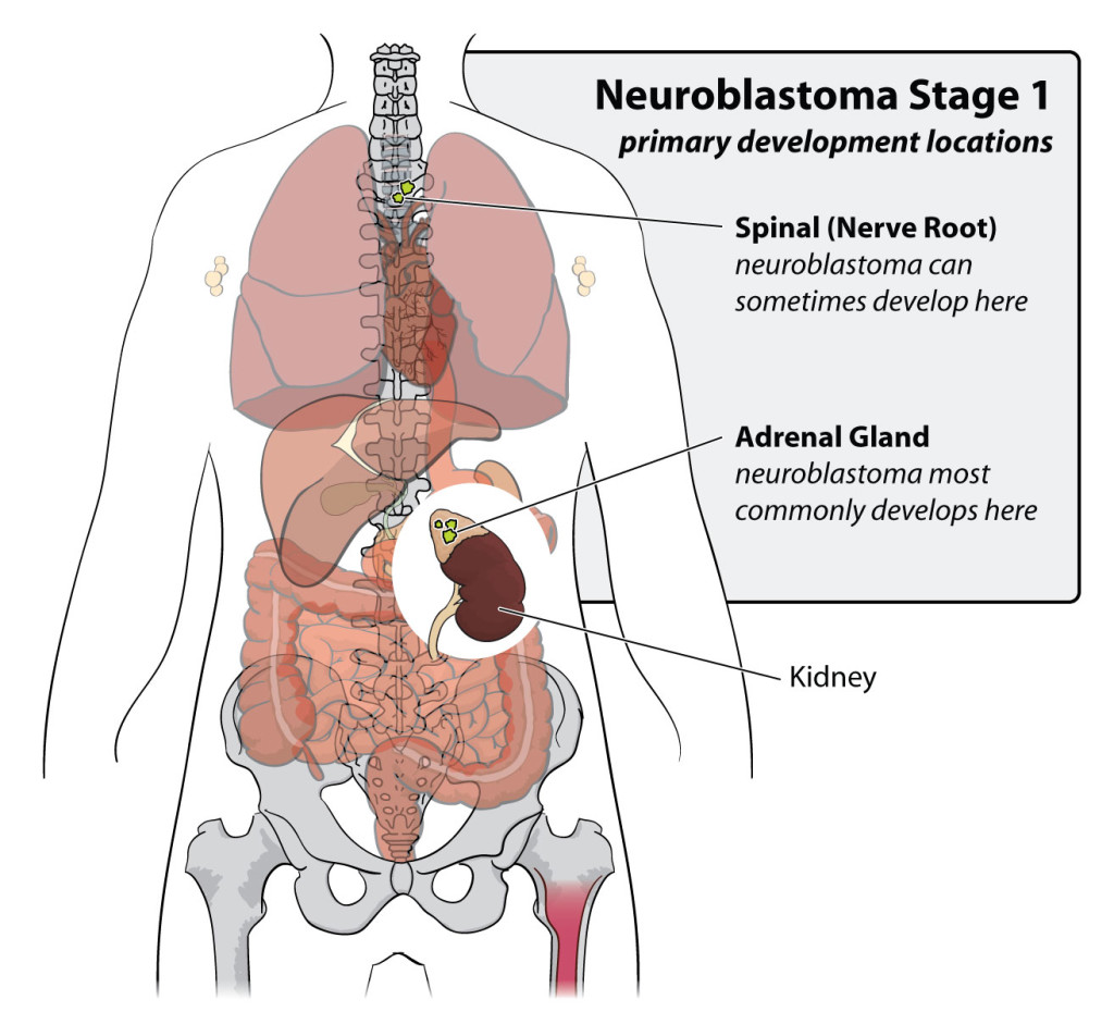 neuroblastoma-stage-1