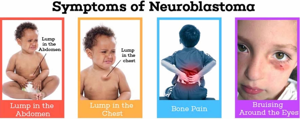 neuroblastoma symptoms