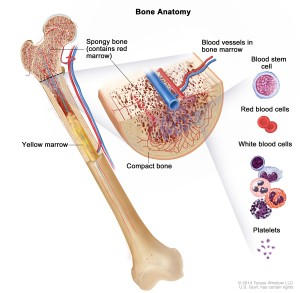 Causes Childhood Leukemia bones