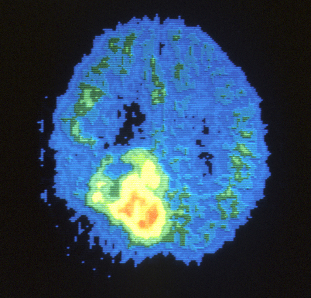 Potential Treatment Options for Childhood Brain Tumors