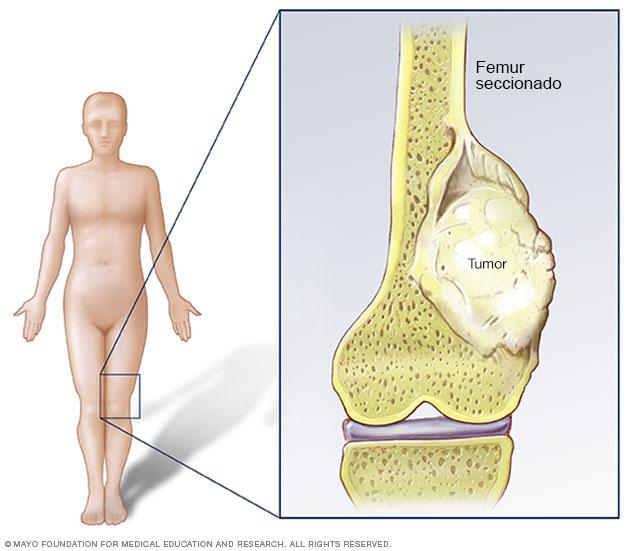 Osteosarcoma es un tipo de cáncer óseo que comienza en las células que forman el hueso. Osteosarcoma ocurre más comúnmente en los huesos largos de brazos y piernas.
